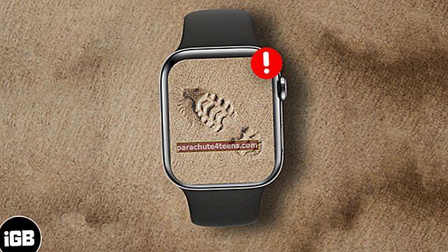 """""""Apple Watch"""" nestebi žingsnių? Kaip tai išspręsti"""